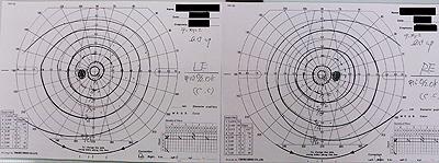 正常視野検査結果
