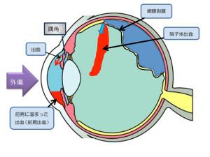 外傷による様々な眼の障害